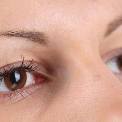Dr Oz Puffy Eyes & Undereye Bags Home Remedies