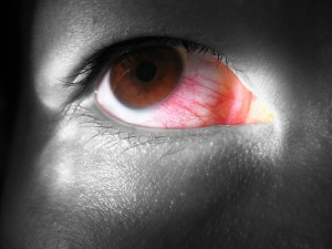 The Drs: Bloodshot Eye Surgery