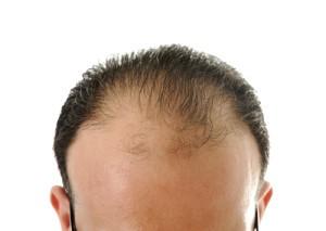The Doctors: Hair Transplant