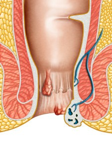 The Drs: Hemorrhoids & Anal Fissures