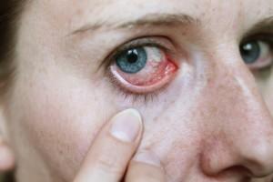 The Doctors: Blepharitis Treatment