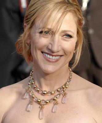 Ellen: Edie Falco on Nurse Jackie, The Sopranos & Breast Cancer