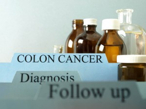 Colon Cancer: The Doctors