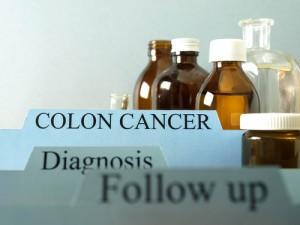 Colon Cancer: The Doctors