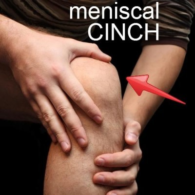 Meniscal Cinch: The Doctors