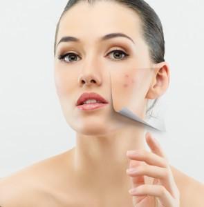The Doctors Gross Anatomy: Severe Acne