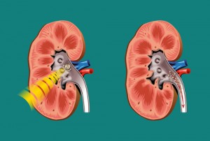The Doctors: What Causes Kidney Stones?