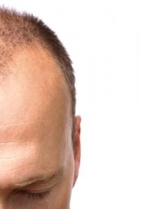 The Doctors: ARTAS Robot Hair Restoration for Male Pattern Baldness