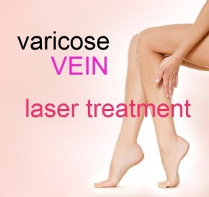 The Doctors: Varicose Vein Laser Treatment