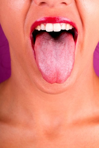 Anemia Tongue R...