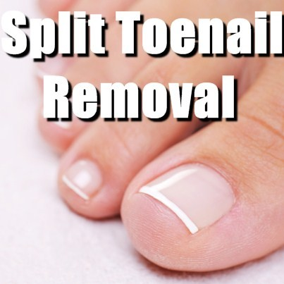 Split Pinky Toenail Treatment - Doctor insights on HealthTap