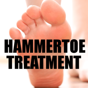 The Doctors: Tips to Prevent a Hammertoe & Surgery Removes Hammertoe