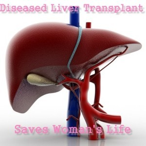 Drs: Doctors Perform Transplants with Sub-Optimal Organs to Save Lives