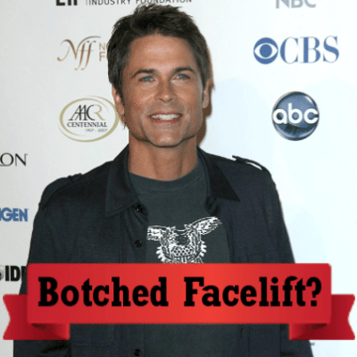 Ellen: Rob Lowe Botched Facelift on Matt Damon & Bill Cosby Impression