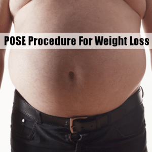 The Drs: Incisionless POSE Procedure May be Key to Obesity Epidemic