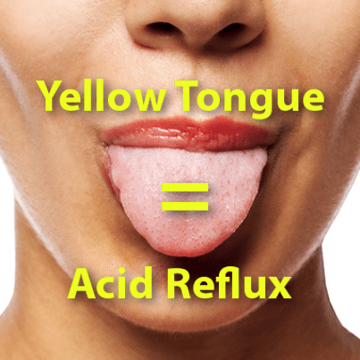Dr Oz 60 Second Health Test Clinic & Yellow Tongue Acid Reflux