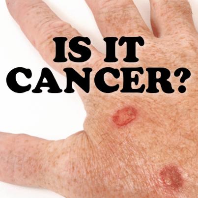 The Doctors Tv Show Benign Seborrheic Keratosis Vs Skin Cancer