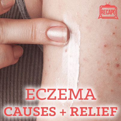 Dr Oz: How To Manage Eczema + Eucerin Eczema Relief Body Creme Review