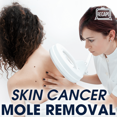 Dr. Jennifer Ashton discussed her skin cancer risk and received her pathology results after removing two moles.