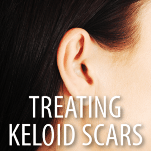 The Doctors: What Is A Keloid Scar? New Freezing Treatment For Keloids