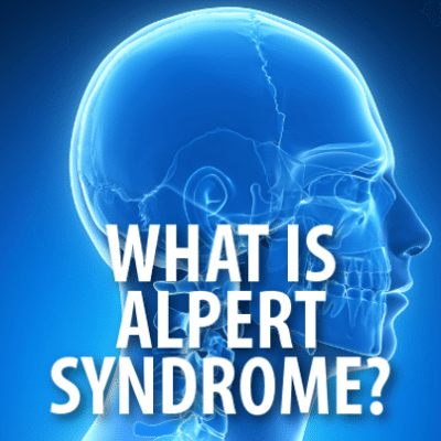 The Doctors: What Is Alpert Syndrome? Distractor Installation Surgery