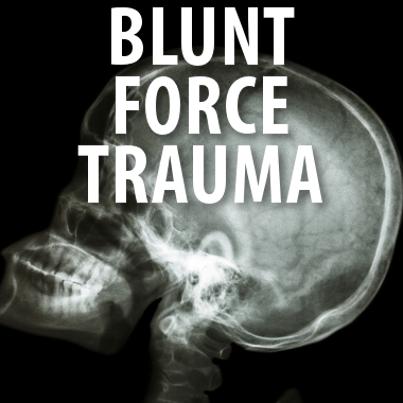 Blunt Force Trauma Deutsch