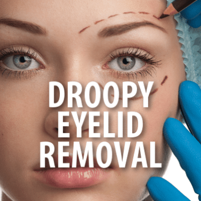 The Drs TV: What Is Eyelid Ptosis? Procedure To Correct Droopy Eyelids