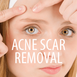 The Drs: The Best Over-The-Counter Acne Products & Acne Scar Removal