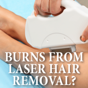 Drs: Severe Burns From Laser Hair Removal + Is The Treatment For You?