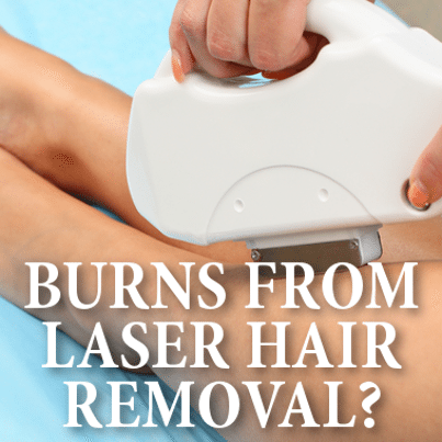 Drs Severe Burns From Laser Hair Removal Is The Treatment For You