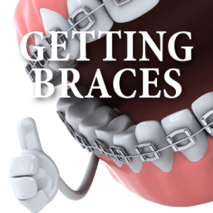 Kelly & Michael: Getting Braces, Good Lie Review + Fury Review