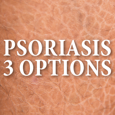 Holmes offers treatment and control of Psoriasis 2