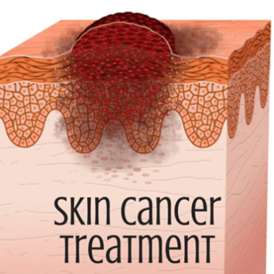 skin-cancer-treatment-