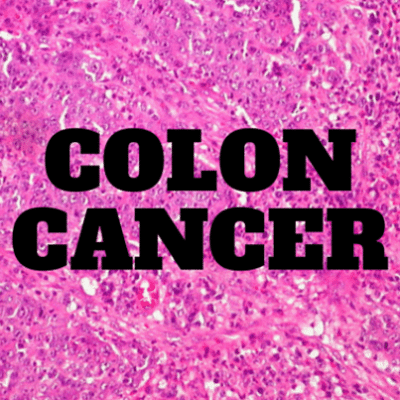 colon-cancer-