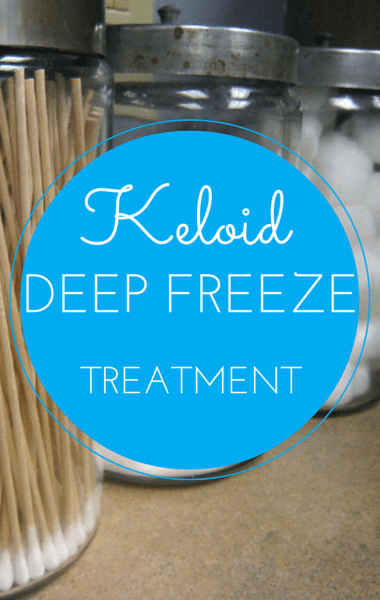 The Drs: Treatment For Painful Itchy Scars + What Are Keloids?