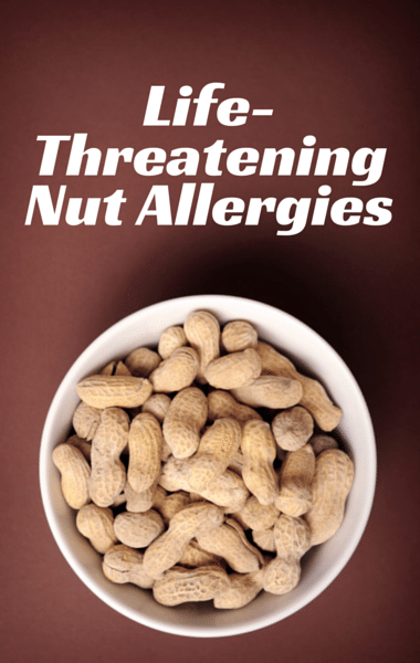Drs: Manslaughter Charge After Allergic Reaction + Food Allergies