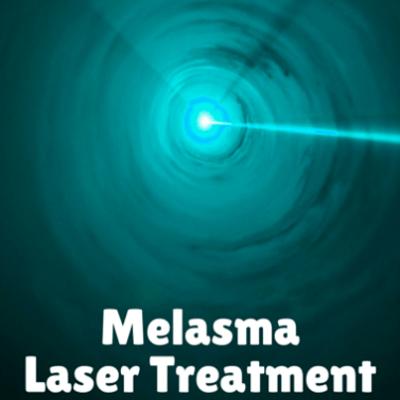 melasma-laser-