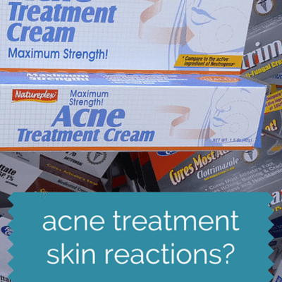 acne-treatment-
