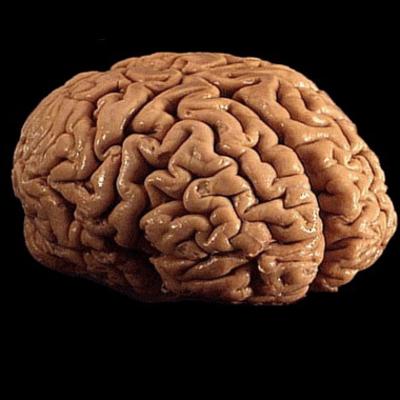 Dr oz mri brain scan after suffering concussion fish oil for Fish oil concussion