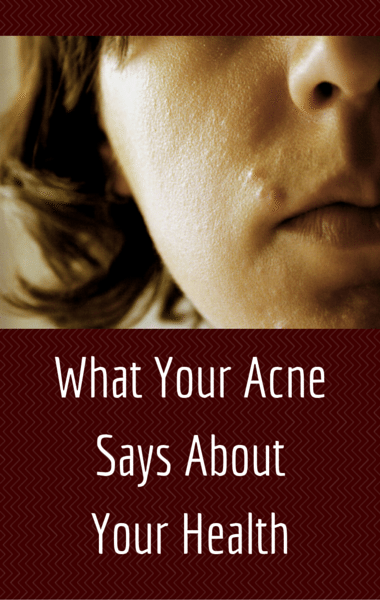 Drs: Acne Breakouts & Your Health + Botox For Teeth Grinding