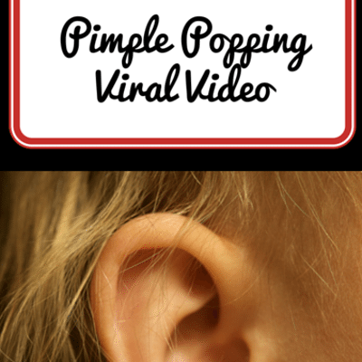 pimple-popping-viral-video-
