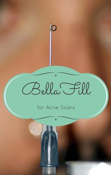Drs: BellaFill For Acne Scars + Baddie Winkle Instagram Star