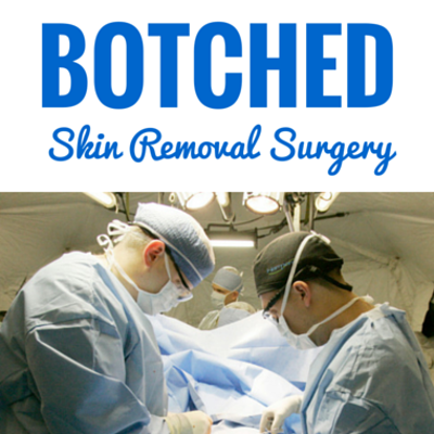 Drs: Botched Plastic Surgery To Remove Excess Skin Under Arms