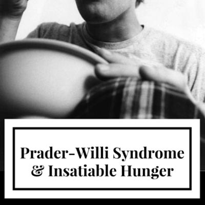 prader-willi-syndrome-