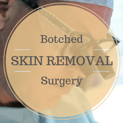 Drs: Botched Skin Removal Surgery + Lymphedema Treatment