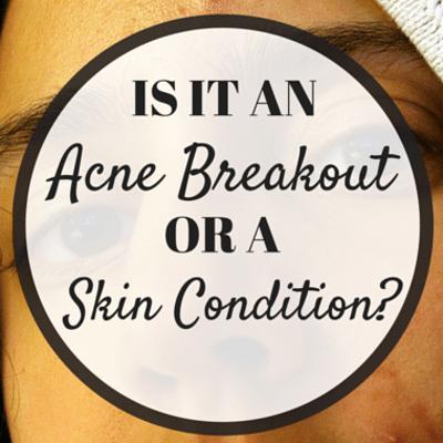 acne-breakout-skin-condition-