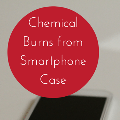 chemical-burns-smartphone-
