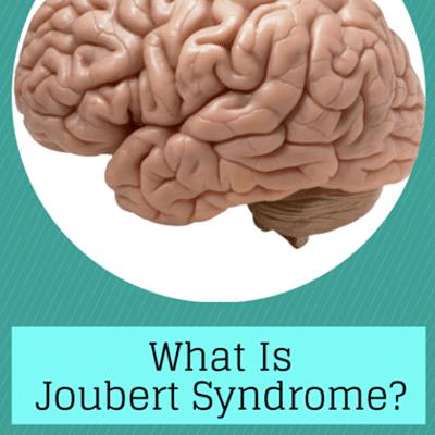 joubert-syndrome-
