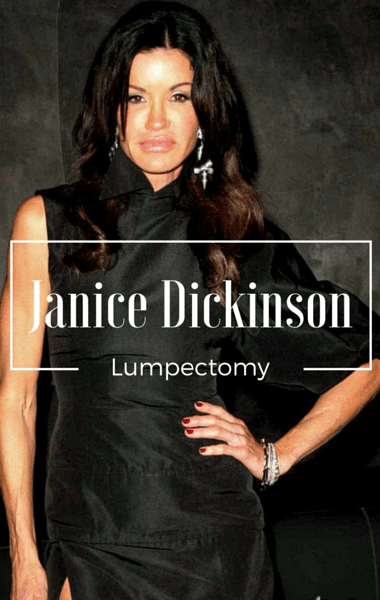 Drs: Janice Dickinson DCIS & Lumpectomy + Implants Increase Risk?