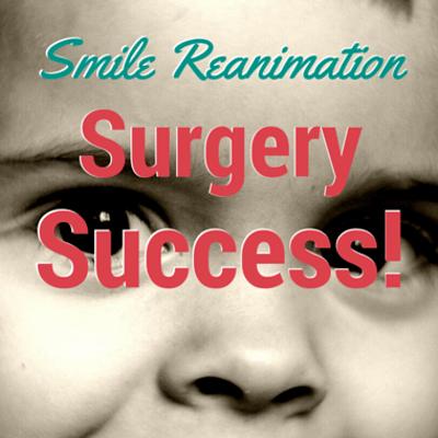 smile-reanimation-surgery-